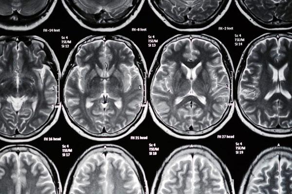 ریسک فاکتورهای سکته مغزی که میتوانید کنترلشان کنید