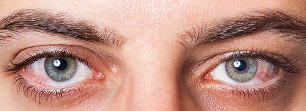 خشکی چشم، علتها و درمان طبیعی