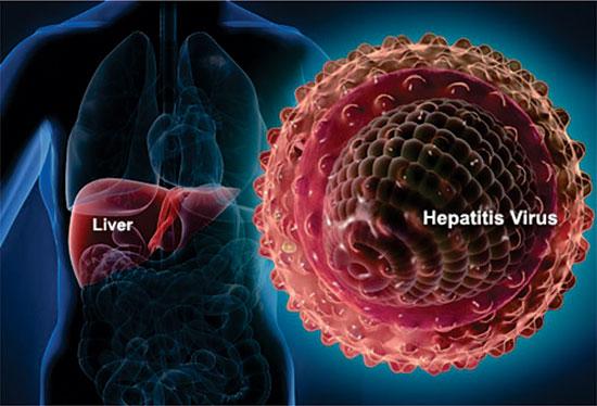 در روز جهانی هپاتیت، انواع آن را بیشتر بشناسیم