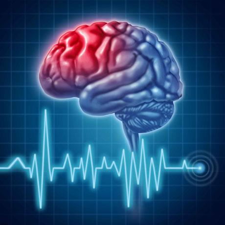 علائم سکتهی مغزی