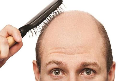 ۵۰درصد ایرانیها مشکل ریزش موی سر دارند!