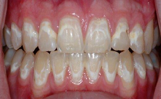 علت وجود لکههای سفید روی دندانها چیست؟